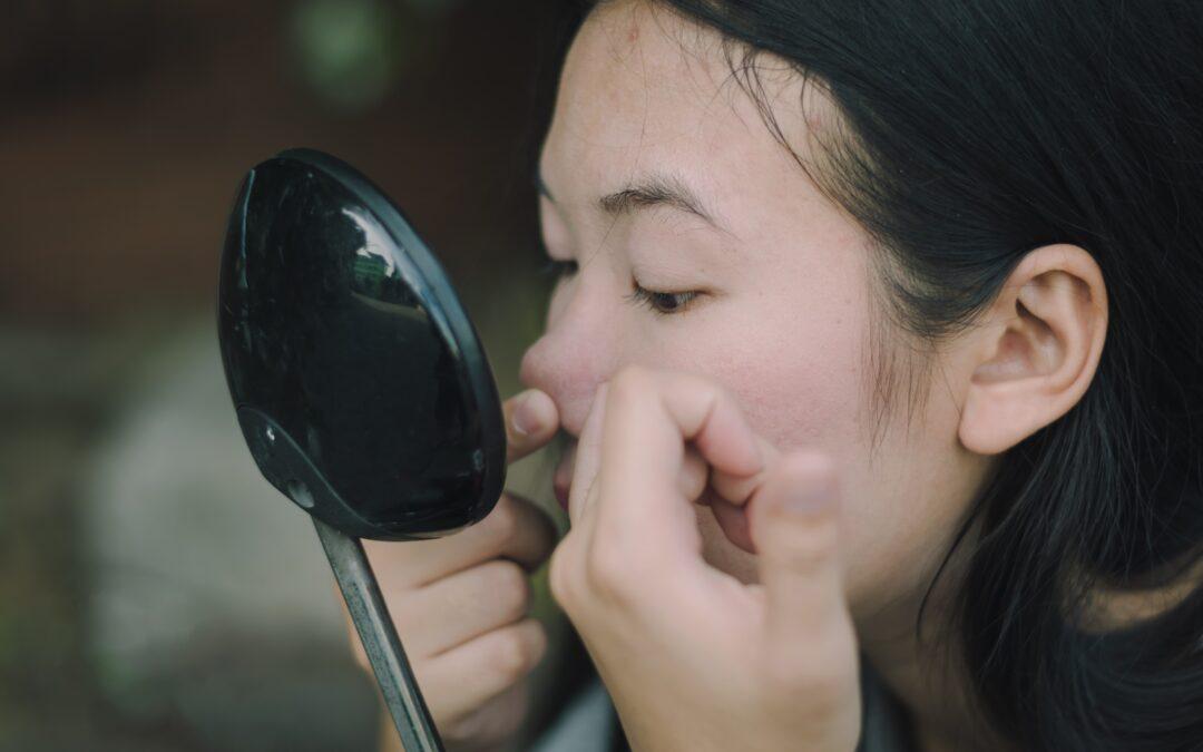 3 Consejos Principales Para el Cuidado de la Piel con Acné Para una Piel Más Saludable